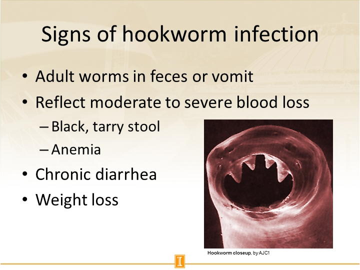Signs of hookworm infection